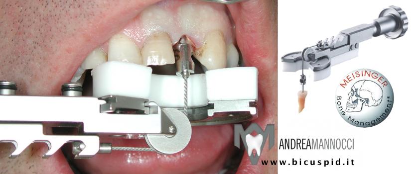 Benex Control Meisinger, Come eseguire un'estrazione conservando l'alveolo chirurgico intatto