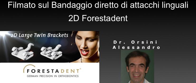Bandaggio diretto di attacchi linguali 2D Forestadent del Dr. Orsini Alessandro