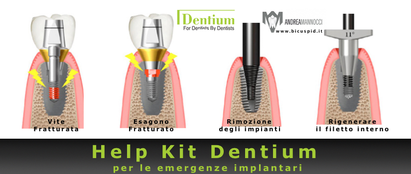 Help Kit Dentium , il kit per le emergenze implantari
