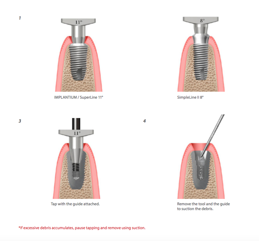 Help kit Dentium: LA PROCEDURE DEL SCREW TAP REPAIR DELLA DENTIUM