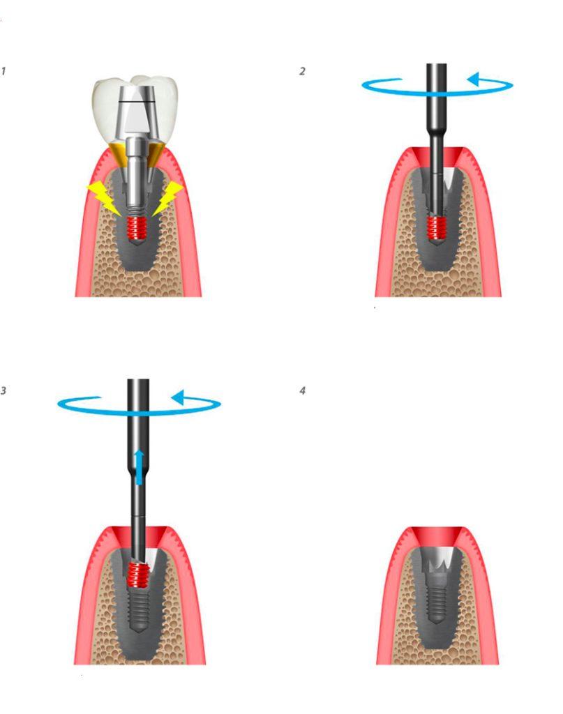 screw remover Procedura di utilizzo per togliere le viti fratturate