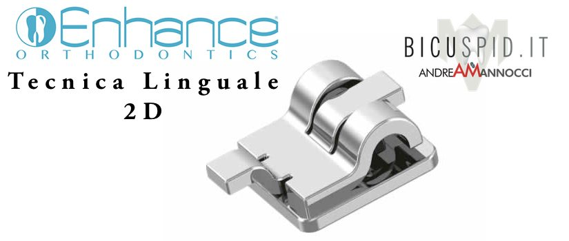 Tecnica Linguale 2D -Enhance Ortodonzia
