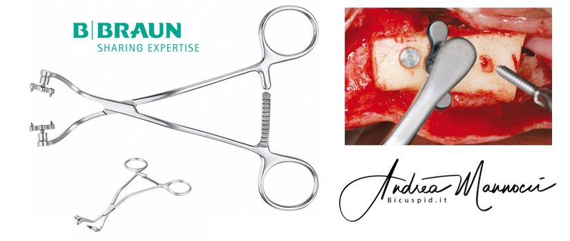 La pinza Aesculap BBraun per il fissaggio dei blocchi ossei